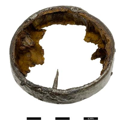 1500 Jahre alte Fußprothese